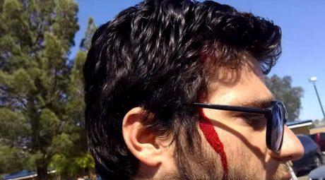 """Ομοφοβικός πάστορας με πλακάτ """"σου αξίζει ο βιασμός"""" τρώει ρόπαλο μπέιζμπολ στο κεφάλι (VIDEO)"""