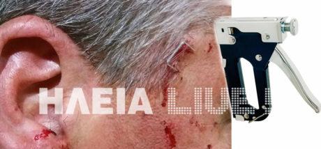 Ηλεία: Του κάρφωσε το συρραπτικό στον κρόταφο σε καβγά για μια δουλειά