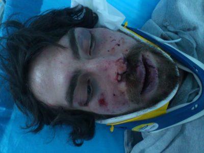 Έκτακτο: Δολοφονική επίθεση χρυσαυγιτών σε φοιτητή
