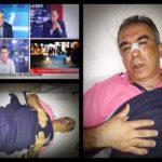 Κέρκυρα: Δεύτερο χωρίς λόγο ξυλοδαρμό κατοίκου από αστυνομικούς πέτυχε η ΕΛ.ΑΣ. σε δέκα μέρες