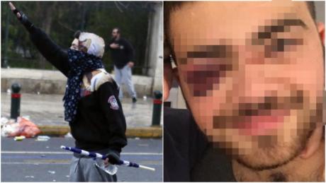 Καταγγελία: Μετανάστης και μαθητές έπεσαν θύματα ξυλοδαρμού από ακροδεξιούς την Κυριακή